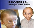 Progeria - Symptoms, Signs and Complications