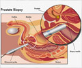 Prostate Biopsy and Needs
