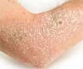 Psoriasis - Symptoms and Signs