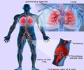 Pulmonary Embolism and Deep Vein Thrombosis