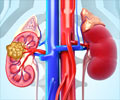 Radiofrequency Ablation (RFA) of Kidney Tumors