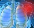 Shoulder Pain - Symptom Evaluation