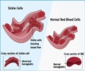 Sickle Cell Anemia - Inheritance / Causes