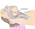 Obstructive Sleep Apnea - Mechanism