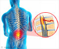 Spinal Injury - Symptom Evaluation