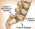 Spondylolisthesis - Symptoms and Signs of Spondylolisthesis