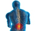 Spondylosis - Diagnosis