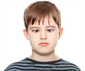 Strabismus | Squint - Types, Causes, Symptoms, Diagnosis, Treatment & Prevention