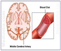 Stroke - Causes