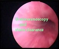 Ureteroscopy for Stone