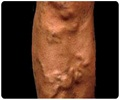 Varicose Veins - How to Relieve and Prevent Varicose Veins?