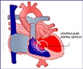 Congenital Heart Disease - Septal Defects - Ventricular Septal Defect