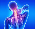 Whiplash and Conditions that Mimic Whiplash
