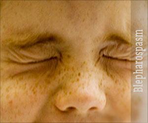 Eye Twitching - Blepharospasm