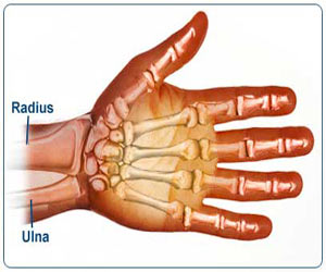 Colle�s Fracture - Drugs
