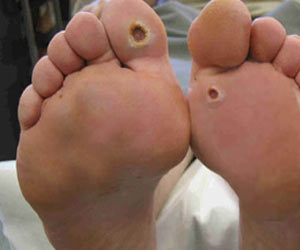 Diabetes - Foot Care - Treatment - Prevention