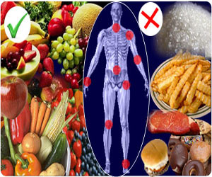 Diet, Nutrition and Supplements for Osteo-Arthritis and Rheumatoid Arthritis