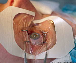 Is Lasik surgery safe?