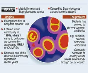 """MRSA """"Super bug"""" – Symptoms - Risk Factors – Diagnosis - Treatment"""