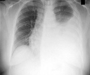 Pleural Effusion - Causes and Types-Symptoms-Diagnosis-Treatment and Complications