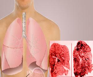 Pneumoconiosis - Definition - Symptoms - Causes - Prevention - Treatment