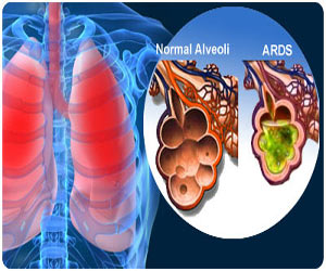 Respiratory Distress Syndrome / Acute Respiratory Distress Syndrome (ARDS)