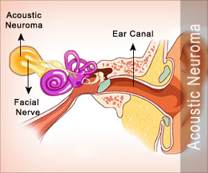 Auditory Tumor / Acoustic Neuroma / Vestibular Schwannoma