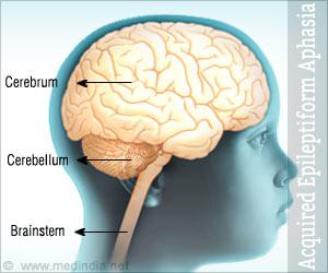 Acquired Epileptiform Aphasia / Landau � Kleffner Syndrome (LKS)