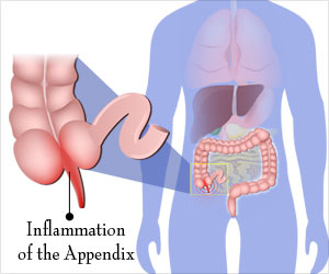 Appendicitis - Drugs