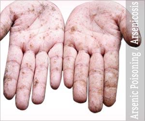 Arsenic Poisoning / Arsenicosis