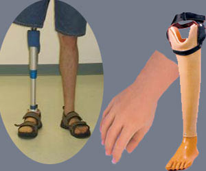 Artificial/Prosthetic Limbs