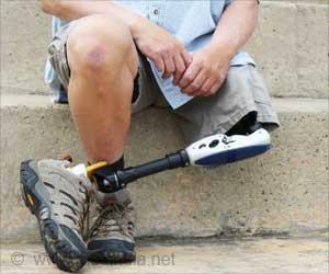 Artificial/Prosthetic Limbs