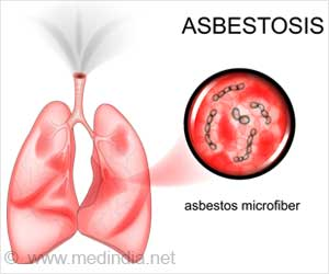 Treatment & Prevention of Asbestosis