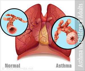 Asthma in Children and Adults