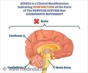 Ataxia - Causes - Symptoms - Diagnosis - Treatment