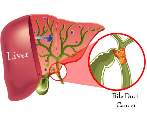 Bile Duct Cancer | Cholangiocarcinoma - Causes, Risk Factors, Symptoms, Diagnosis, Stages ...