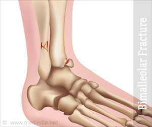 causes and treatment of bimalleolar fractures Bimalleolar fracture information including symptoms, causes, diseases, symptoms, treatments, and other medical and health issues.