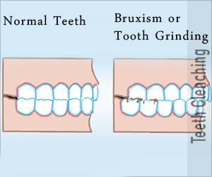 Bruxism / Tooth Grinding / Jaw Clenching / Teeth Clenching / Parasomnia