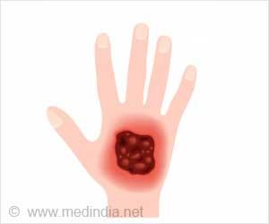Buruli Ulcer - Causes, Symptoms, Diagnosis, Treatment ...