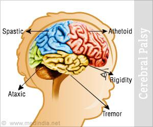 cerebral palsy brain vs normal brain wwwpixsharkcom