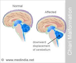 Chiari Malformation - Types, Symptoms, Diagnosis & Treatment