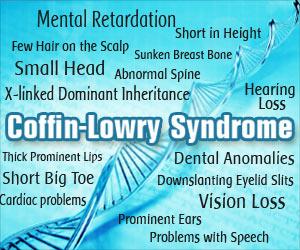 Coffin Lowry Syndrome Causes Symptoms Diagnosis