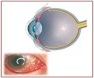 Conjunctivitis / Pink Eye