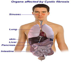 Fibrocystic Disease - Drugs