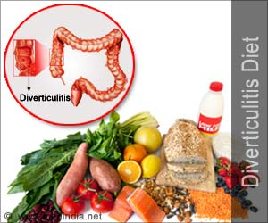 how to avoid diverticulitis attacks