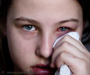 Eye Discharge - Symptom Evaluation