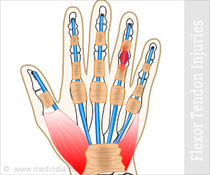 Flexor Tendon Injuries Causes Symptoms Diagnosis