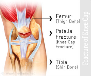 Fracture of Knee Cap