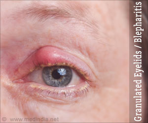 Granulated Eyelids Blepharitis Types Signs Diagnosis