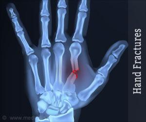 Hand Fractures Causes Symptoms Diagnosis Treatment